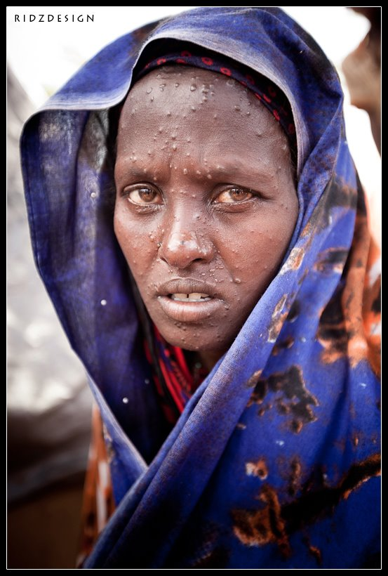 Fatima is 38 years old and currently lives in the Siliga IDP (Internally Displaced Persons) Camp in Mogadishu, Somalia. She suffers from a severe case of chicken pocks and is one of over 20,000 people who live at the camp.